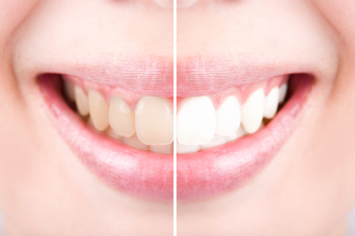 Close-up teeth female between before and after whitening the teeth.